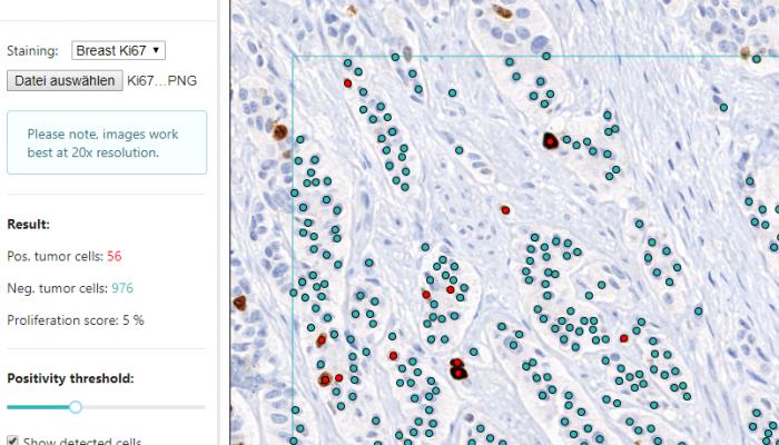AI-unterstützte Tumorzellenidentifikation. Foto MindPEAK